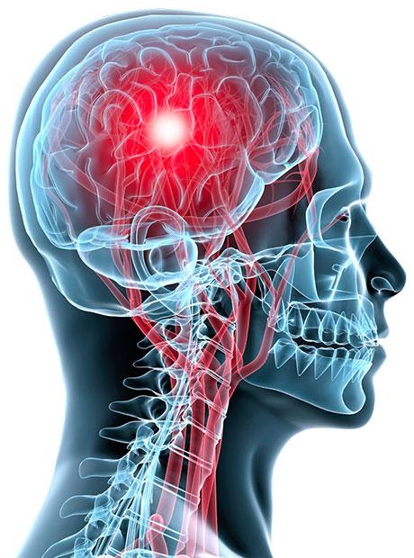 Documenting-Billing-Brain-Attacks-01-10-2014